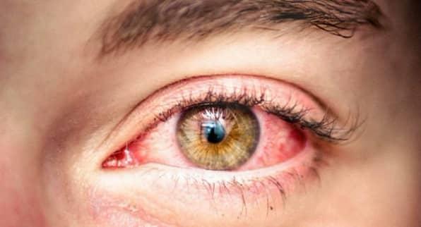 Лечение синдрома сухого глаза после перенесенного COVID-19